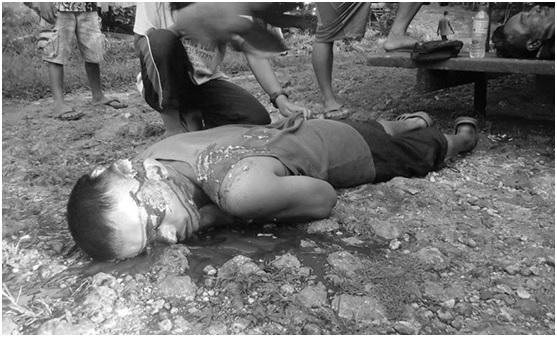 Cadáver de Bello Sinzo fotografiado al poco de ser ejecutado por la milicia Magahat-Magani.